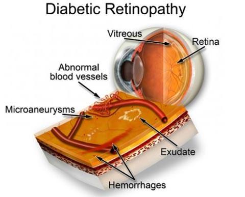 Bệnh tiểu đường thường được phát hiện đầu tiên qua kiểm tra mắt