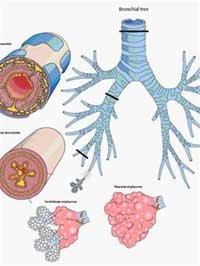 VN có số người mắc bệnh phổi tắc nghẽn mạn tính cao nhất Châu Á - Thái Bình Dương