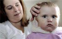 Trẻ cũng có thể bị đột quỵ
