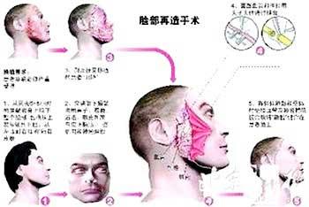 Kinh nghiệm cấy ghép mặt từ Trung Quốc