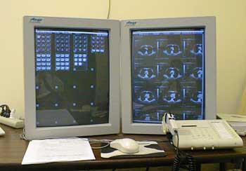 Ai đã phát minh ra máy vi tính chụp cắt lớp phân tầng?