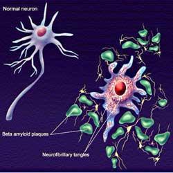 Trị bệnh Alzheimer bằng hạt vàng nano
