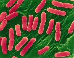 Sắp 'báo tử' khuẩn gây ngộ độc thức ăn