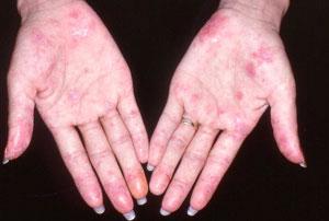 Trị bệnh lupus bằng tế bào gốc