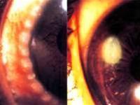 Phòng ngừa viêm nhiễm, dị ứng ở mắt