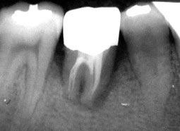 Lấy tế bào gốc từ mầm răng khôn