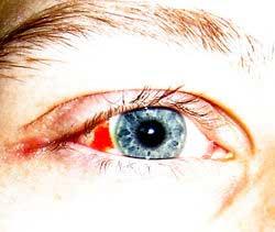 Mắt bị đỏ