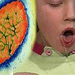Triển vọng của vắc xin ngừa ho gà