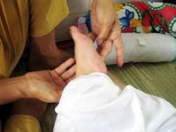 Bệnh tay, chân, miệng: Cảnh báo biến chứng thần kinh