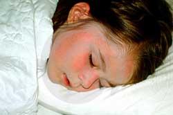 Thiếu ngủ ảnh hưởng xấu tới não của trẻ