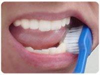 Bạn nên thay bàn chải đánh răng khi nào?