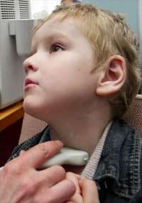Nga: các ca ung thư tuyến giáp tăng gấp đôi