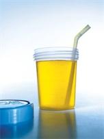 Nước tiểu có phải là thuốc chữa bệnh?