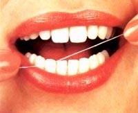 Xỉa răng lung tung gây viêm lợi