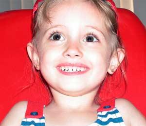 Mổ đẻ, tăng nguy cơ sâu răng ở trẻ
