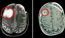 Cần phát hiện sớm u não ở trẻ em