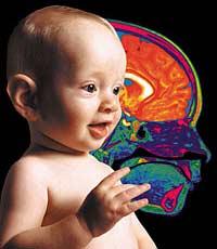 Nhiều trẻ sơ sinh viêm màng não