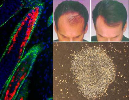 Tế bào gốc tạo tóc đã được kiểm chứng trên da chuột