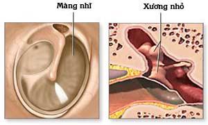 Biểu hiện của thủng màng nhĩ