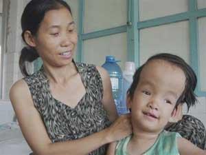 """Não úng thủy ở trẻ em: Điều trị được nếu tận dụng """"thời gian vàng"""""""