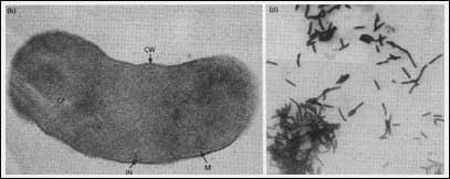 Khuẩn mêtan (Methanobacterium) - Nguồn khí đốt dưới đáy nước