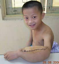 Cắt bỏ nốt khối u 4 kg trên cậu bé mười tuổi