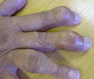 Điều trị bệnh Gout?