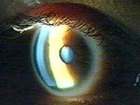 Kiểm tra mắt có thể phát hiện bệnh Alzheimer