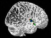 Bệnh tự kỷ ảnh hưởng đến toàn bộ não
