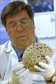 Phát hiện gien chủ chốt trong sự tiến hóa của não bộ con người