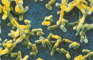 Vi khuẩn Yersinia pestis được cho là đã gây bệnh dịch hạch giết chết hơn 20 triệu người vào thời Trung cổ.