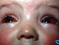 Cận thị - Cách chăm sóc và phòng ngừa biến chứng