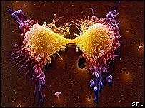 """Phát hiện """"người hành hình"""" các tế bào ung thư"""
