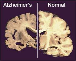 Tiếp xúc với từ trường cao làm tăng nguy cơ bệnh Alzheimer