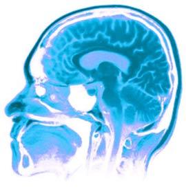 Não bộ con người vẫn tiếp tục tiến hóa