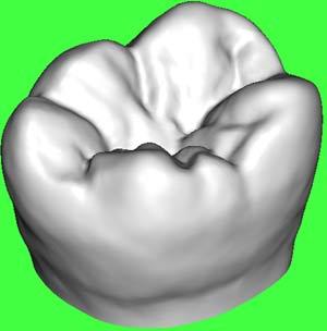 Vì sao răng khôn hay gây đau?