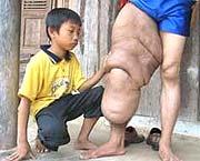 """Người đàn ông có chiếc """"chân voi"""""""