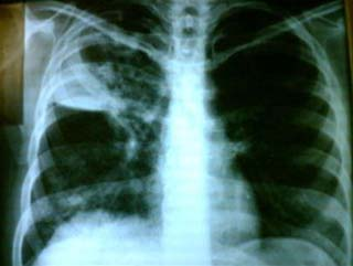 Lao phổi có di truyền?