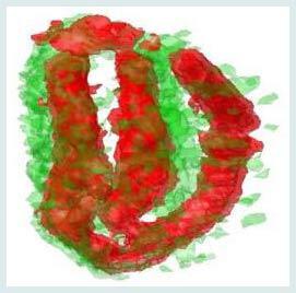 Bức ảnh 3-D cho thấy sắt (màu đỏ) và mangan (màu xanh lá cây) được tìm thấy trong hạt giống.