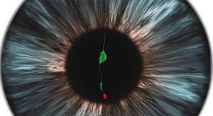 Có thể chữa mù bằng kỹ thuật cấy ghép