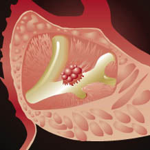 Ăn nhiều đường dễ bị ung thư tuyến tụy