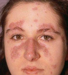 Phụ nữ mắc bệnh lupus không nên mang thai
