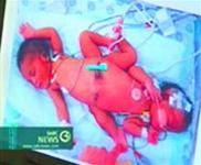 Ai Cập: phẫu thuật thành công cặp song sinh dính liền đầu tiên