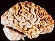 Tổn thương sọ não làm phát triển năng lực phi thường