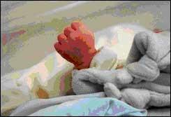 Tử vong đột ngột ở trẻ nhỏ có liên quan đến dị thường ở não