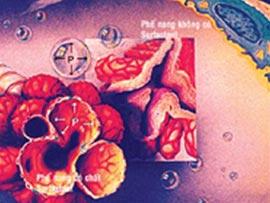 Bệnh màng trong ở trẻ sơ sinh