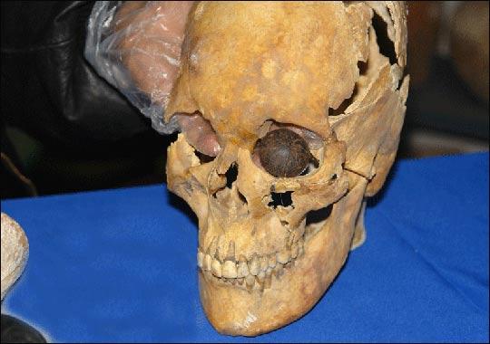 Cầu mắt được phát hiện cùng với các di cốt của người mang nó trong một nghĩa địa