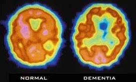 Scan não bộ có thể giúp chẩn đoán sớm bệnh Alzheimer