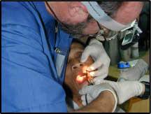 Hơn 75% người Việt từ 18 - 34 tuổi bị sâu răng