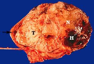Phát hiện gien gây ung thư thận ở trẻ em